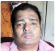Dr. Bhanu Pratap R Bind - Homeopathy