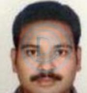 Dr. Sai Seshadri Bharath Thota - Dental Surgery