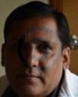 Dr. Srinidhi  - Dental Surgery, Implantology, Oral And Maxillofacial Surgery