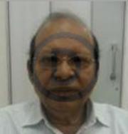Dr. Paras Lavatre - Psychiatry
