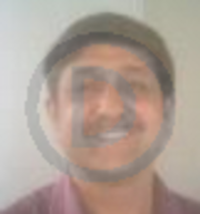 Dr. Kshiteendra Krishna - Dermatology