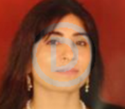 Dr. Vimmi Sharma - Dental Surgery