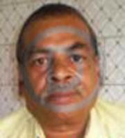 Dr. Dinesh Chand Gupta - Paediatrics