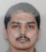 Dr. A. Hari Prasad - Dental Surgery, Prosthodontics